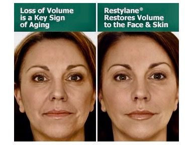 2 Restylane Filler Treatments