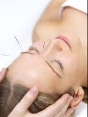 Ninety Minute Acupuncture Consultation and Treatment